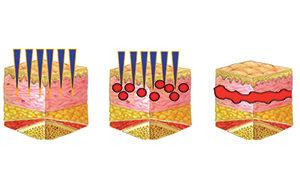 Collagen image